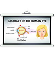 Diagram of cataract in human eye vector image vector image
