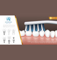 realistic dental health concept vector image