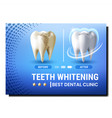 teeth whitening creative promotional poster vector image vector image