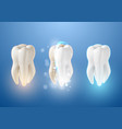 teeth whitening system 3d realistic tooth vector image vector image