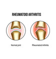 normal and rheumatoid arthritis joints vector image