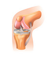 knee joint isolated vector image