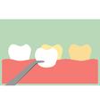 veneers teeth vector image vector image