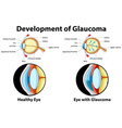 Diagram showing development of glaucoma vector image vector image