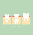 permanent tooth located below primary tooth vector image vector image