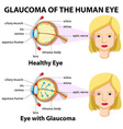 Glaucoma of the human eye vector image vector image