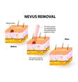 Moles removal vector image vector image