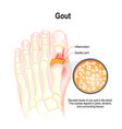 gout is a form of inflammatory arthritis vector image vector image
