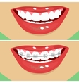 dental braces before and after vector image