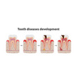 development tooth disease medical poster vector image vector image