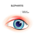 eye of human blepharitis inflammation of the vector image vector image