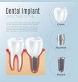 realistic dental implant infographics vector image