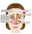 sinusitis vector image vector image