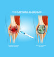 therapeutic blockage with injection therapy vector image vector image