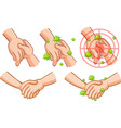 coronavirus theme with hand full germs vector image