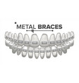 metal braces human jaw braces on teeth vector image