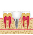 a dental implant in bone between teeth for vector image