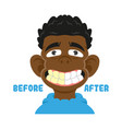 befor after clean teeth vector image vector image