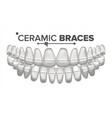 ceramic braces human jaw dentist vector image vector image