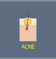 acne icon vector image