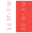 ears nose and lips reshaping before and after vector image vector image