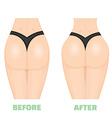 Buttocks breech butt rear nates augmentation vector image vector image