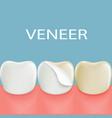 dental veneers on a human tooth stock vector image vector image