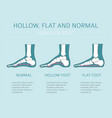 foot deformation types medical desease vector image vector image