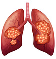 Lung cancer process in detail vector image