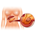 Pancreas cancer in woman vector image vector image