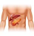 Pancreas cancer diagram in detail vector image vector image
