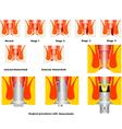 Hemorrhoid vector image vector image