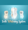 3d realistic teeth cleaning process tooth vector image