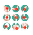 rheumatism or rheumatic disorder medical set vector image