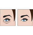 dark circles under eyes to remove vector image vector image