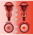 cervical cancer image vector image