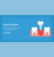 dental implant banner horizontal cartoon style vector image vector image