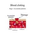 Blood clotting Stage 1 Infographics vector image vector image
