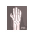 x ray image of human hand cartoon vector image vector image