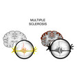 multiple sclerosis of the brain vector image vector image