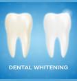 tooth veneer teeth whitening whitening vector image vector image