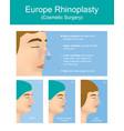 rhinoplasty plastic surgery vector image
