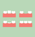 step of caries to first teeth vector image vector image