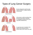types of lung cancer surgery vector image
