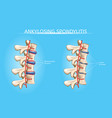 spine joints arthritis symptoms infographic vector image