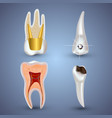 set of 3d realistic clean and dirty tooth vector image
