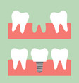 filling dental implant with crown vector image vector image