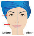 aging face treatment before and after vector image