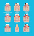 popular teeth diseases icons in flat design vector image vector image
