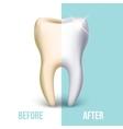 Dental veneer teeth whitening concept vector image